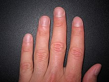 Ongles sur les doigts dune main humaine.