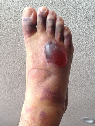 Fracture blister - Example of fracture blister