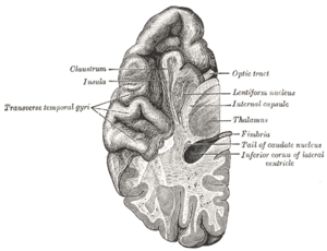 """Transverse temporal gyrus - Section of brain showing upper surface of temporal lobe. (""""Transverse temporal gyri"""" visible at center left.)"""