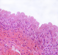 bladder wall transitional epithelium