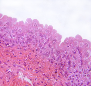 Urothelium - Transitional epithelium of the urinary bladder. Note the rounded surface of the apical cells -- a distinguishing characteristic of this type of epithelium.