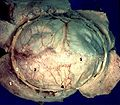 Human brain dura mater description.JPG