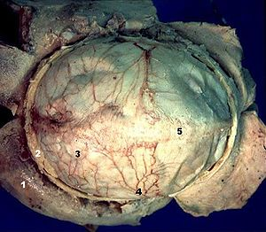 Middle meningeal artery - Image: Human brain dura mater description