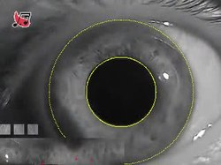 File:Iris Recognition.ogv