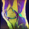 Knee MRI, T1T2PD 15.jpg