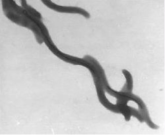 Magnetotactic bacteria - Magnetospirillum magnetotacticum bacteria with black magnetosome chains visible