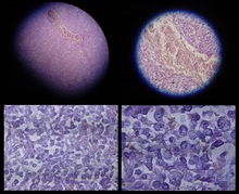 Micrographs Showing Conventionally Stained Mesothelioma In A Core Biopsy Higher Magnifications On Right