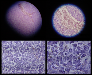Micrographs showing mesothelioma in a core biopsy.