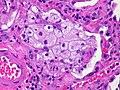 Obstructive pneumonia (4659659711).jpg