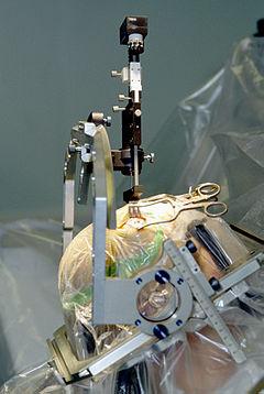 Parkinson surgery.jpg