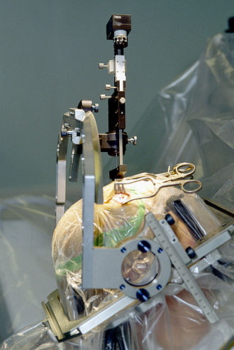 Parkinsonian gait - Deep Brain Stimulation on a Parkinson's patient. The picture shows the process of implantation of a DBS electrode into a patients brain.