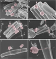 Pennate diatoms infected with chytrid-like fungal pathogens.webp