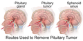 Pituitary Tumor Removal.png