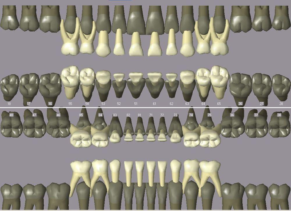 Zahnwurzel - Wikiwand