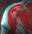 Shoulder MRI 135610 rgbca 61F.png