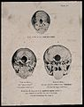 The bases of three skulls; a new born infant's, a misognynis Wellcome V0009503.jpg