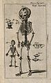 The skeletons of two foetuses, two and five months old, demo Wellcome V0007790ER.jpg