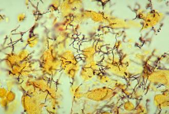 Treponema - Treponema pallidum spirochaetes.