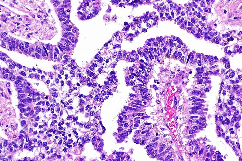Datei:Yolk sac tumour -- high mag.jpg