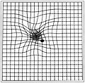 Amsler grid - age-related macular degeneration EC04.JPG