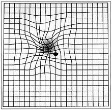 Augenheilkunde Retina Und Sehbahn Wikibooks Sammlung