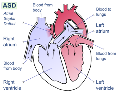 Atrial septal defect-en.png