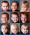 Barth syndrome consistent facial features of boys (Orphanet Journal of Rare Diseases Clarke et al).jpg