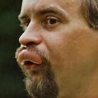 Homem vítima de ferroada no lábio superior.
