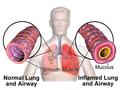 Blausen 0620 Lungs NormalvsInflamedAirway.png