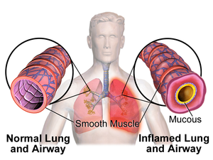Bronchoconstriction - Illustration depicting bronchoconstriction (Asthma)