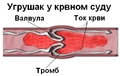 Blood clot diagram srpski.PNG
