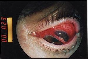 Blunt ocular trauma - iris protrusion.jpg