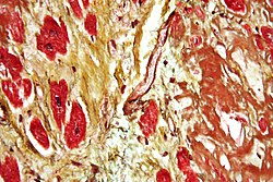 صورة مجهرية a heart with fibrosis (yellow) and amyloidosis (brown). Movat's stain.