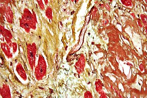 Pathology - An instance of diagnosis via histopathology, this high-magnification micrograph of a section of cardiac tissue reveals advanced cardiac amyloidosis.  This sample was attained through an autopsy.
