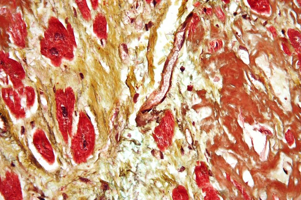 Cardiac amyloidosis very high mag movat