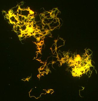 Mycobacterium tuberculosis - Cording M. tuberculosis (H37Rv strain) culture on the luminescent microscopy