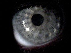 Corneal transplant for keratoconus, approximately 1 week after surgery. Multiple light reflections indicate folds in the cornea which later resolved.