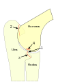 Elbow-Dysplasia-Manifestations.svg