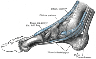 compression neuropathy and painful foot condition in which the tibial nerve is compressed as it travels through the tarsal tunnel