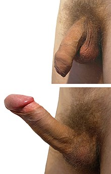 Male foreskin retract sex video