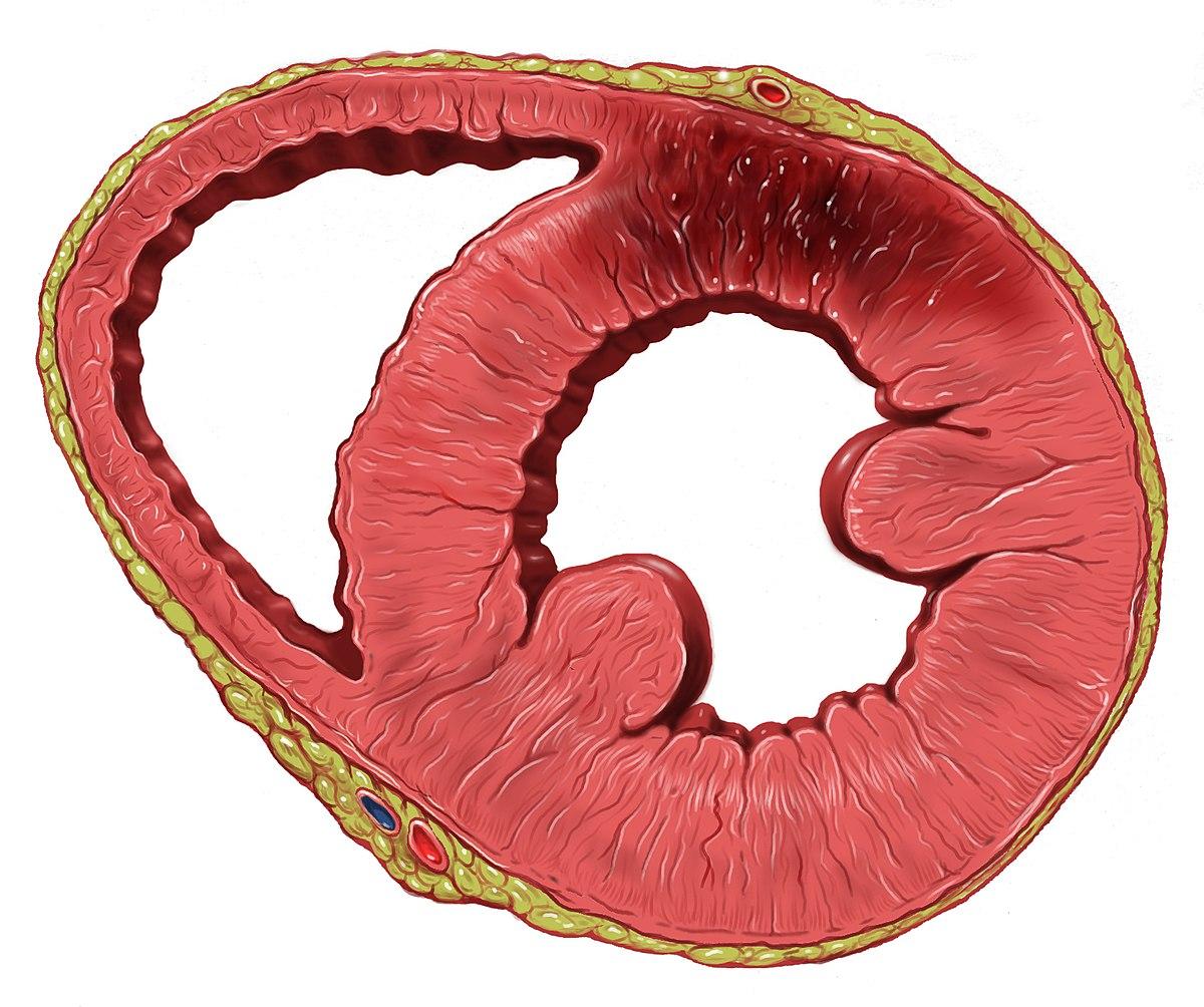 enfermedad isquemica del corazon wikipedia