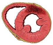 Representación de un infarto de la pared anterior del corazón.