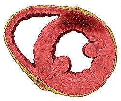 Visualizzazione di un infarto nella parete posteriore del ventricolo sinistro.