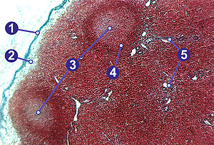 Lymph node - 1) Capsule;   2) Subcapsular sinus;  3) Germinal centre;  4) Lymphoid nodule;  5) Trabeculae