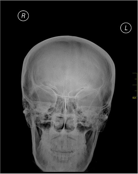 File:Medical X-Ray imaging HXV05 nevit.jpg