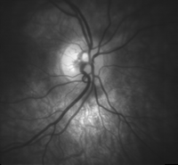 High detail picture of optic disc.