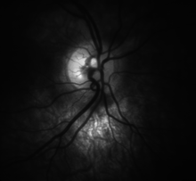 High detail picture of optic disc [epiCam].