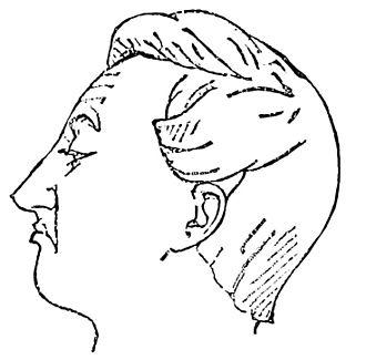 Contempt - Facial expression of contempt
