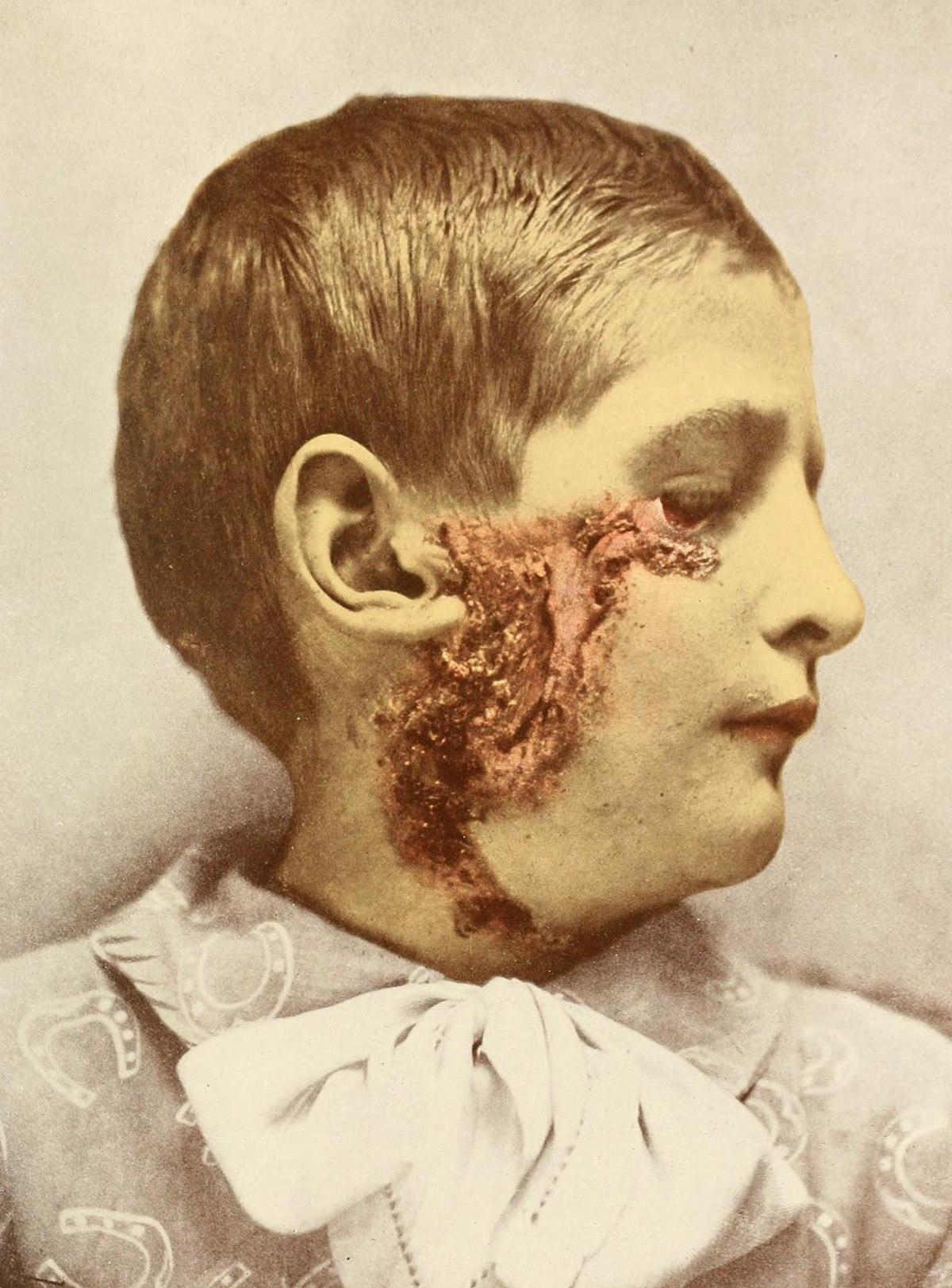 book bleeding skull