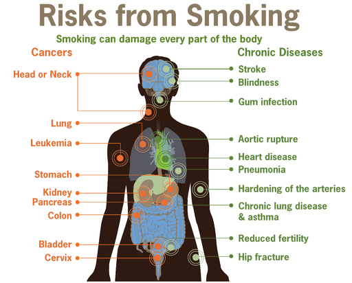 Risks form smoking-smoking can damage every part of the body